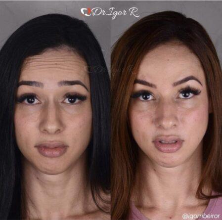 Botox em fortaleza